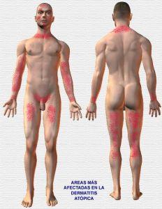 dematitis atopica1atopica