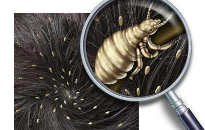 los-piojos-unos-parasitos-indeseables-1