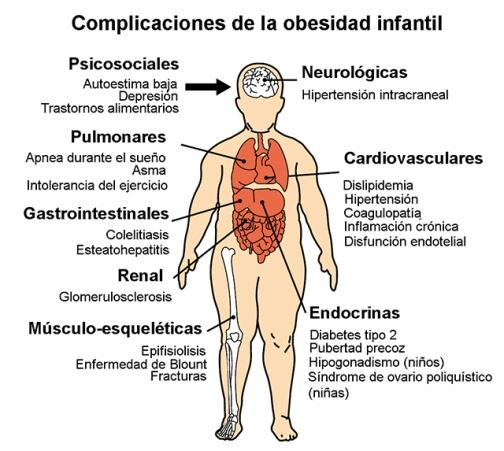 obesidad_infantil.jpg